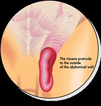 Hernia Types & Hernia Treatment